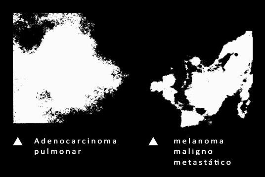REMEDIOS-URBANOS_tumores-humanos
